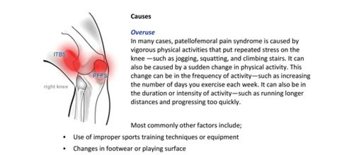 Patellofemoral-Pain-Syndrome-1